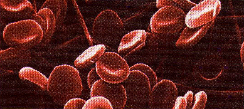 Histoire de la transfusion à travers les images (I)