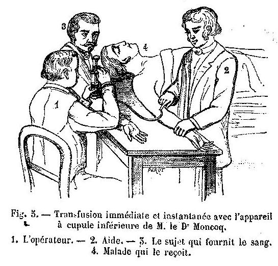 Histoire de la transfusion à travers les images (II)