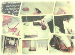 la transfusion du sang conservé 1938